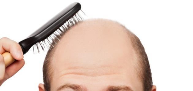 أمراض تسبب تساقط الشعر