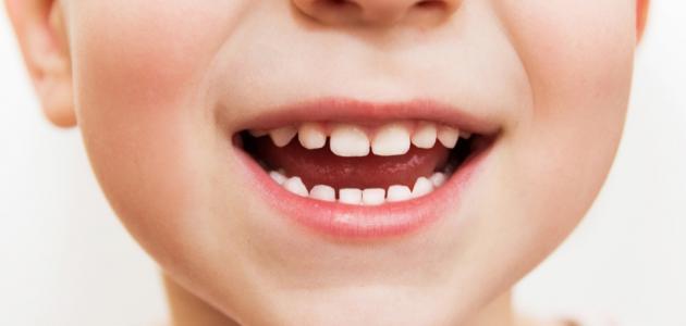 علاج لصفار الاسنان