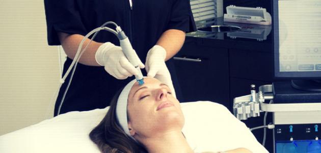 علاج حفر الوجه بالليزر