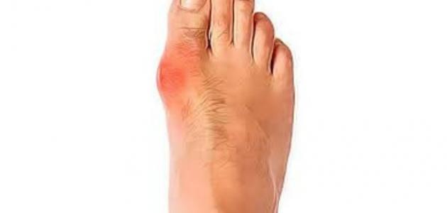 أمراض أصابع القدم