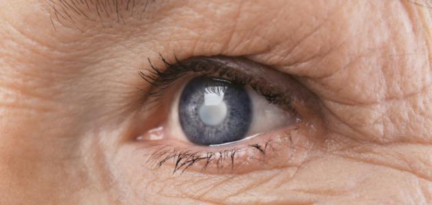 علاج دموع العين