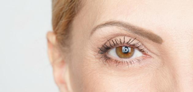 علاج مرض الذبابة الطائرة في العين