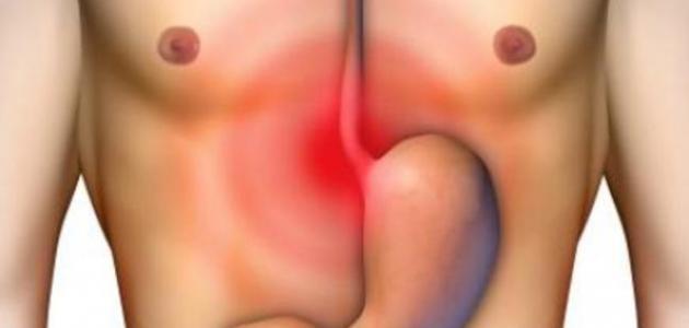 علاج نزيف قرحة المعدة