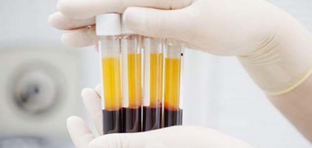 ae7de2986 علاج نقص الصفائح الدموية - إستشاري