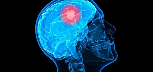 ما هي أعراض ورم الرأس