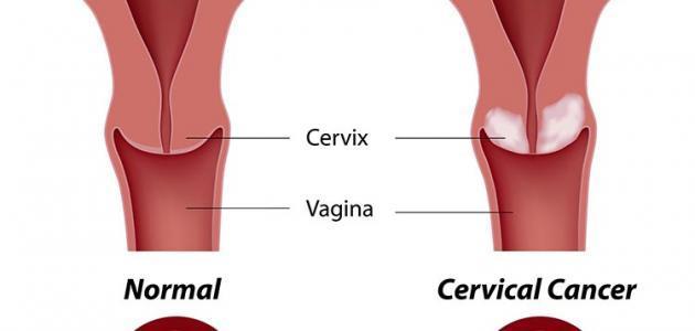 علائم سرطان الرحم