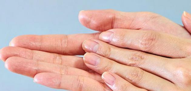 ماهو علاج تعرق اليدين والقدمين