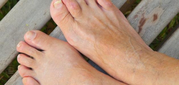 ماهو علاج الفطريات بين اصابع القدمين