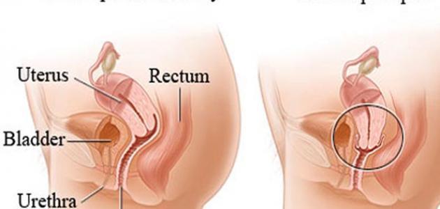 ماهو علاج رخاوة الرحم