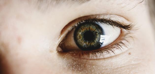 علاج الهالات السوداء حول العينين