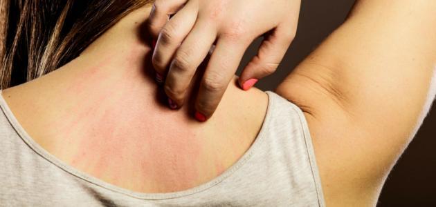 علاج حساسية الجلد والحكة