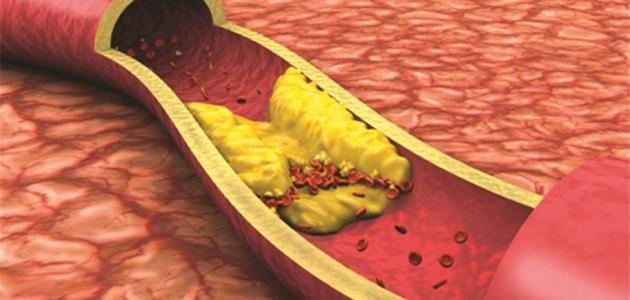 ما هي أعراض ارتفاع الكوليسترول