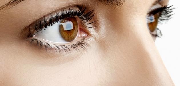 علاج حساسية العين