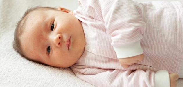علاج مرض الصفار عند حديثي الولادة إستشاري