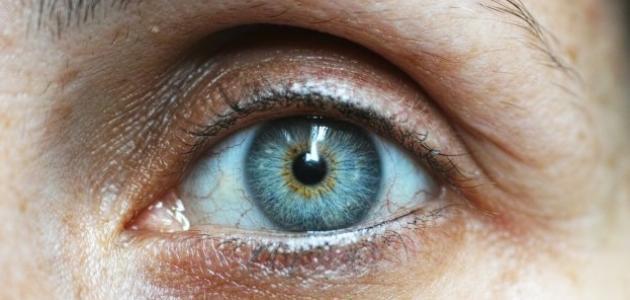 آلام العين والصداع
