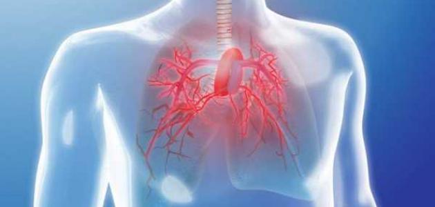 ارتفاع ضغط الدم الرئوي