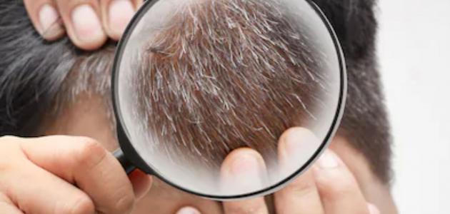 علاج ظهور الشعر تحت الجلد