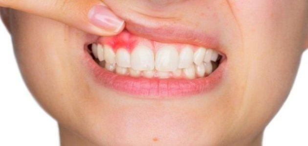 ارتفاع اللثة عن الاسنان