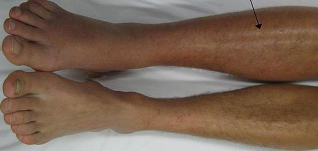 علاج تخثر الدم في الساق