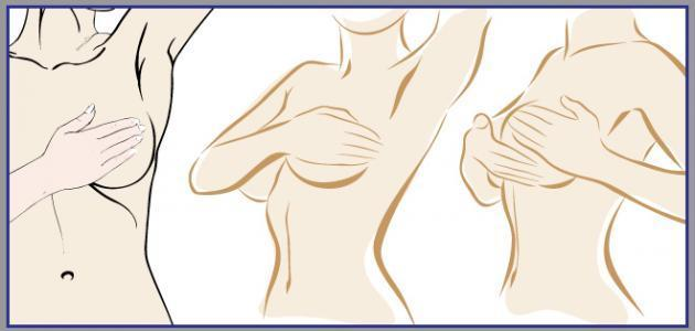 علاج تحجر الثدي بعد الولادة