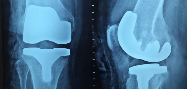 وجع العظام والمفاصل