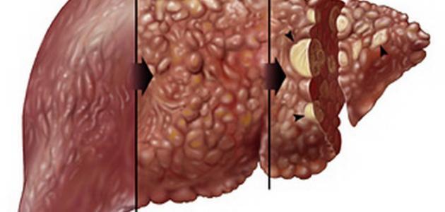 علامات تليف الكبد