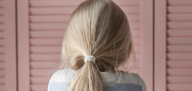 مرض الهربس للاطفال