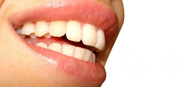 علاج التهاب الفم واللسان