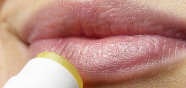 فيروس هربس الفم