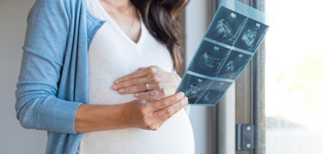 تطور نمو الجنين في الشهر السابع