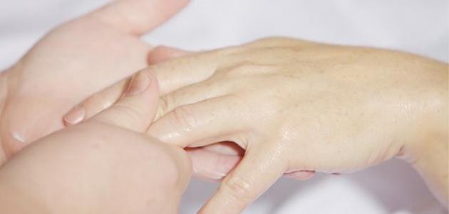 ما هو علاج جفاف الجلد