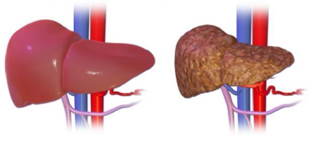 ما هو علاج تشمع الكبد