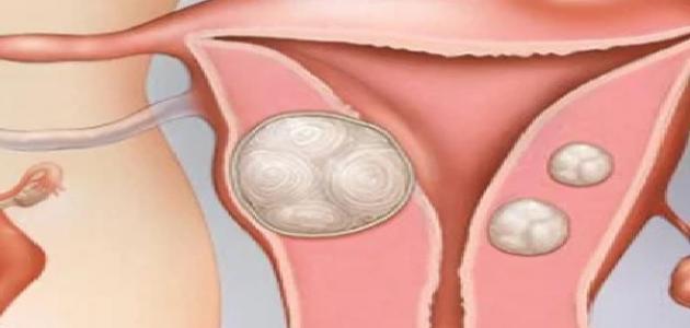 ما هو علاج تليف الرحم