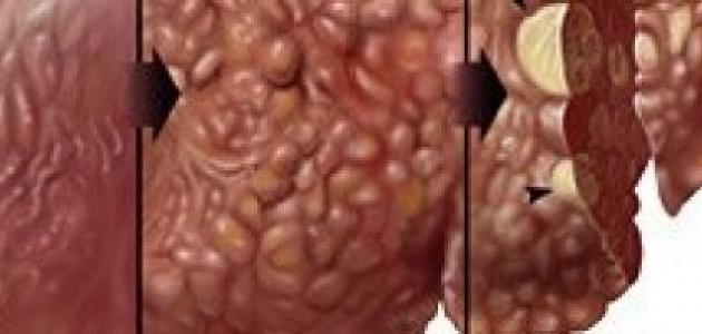 مطعوم التهاب الكبد الوبائي