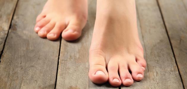 معالجة انتفاخ القدمين