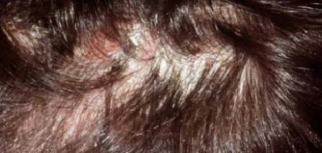التهاب بصيلات الشعر