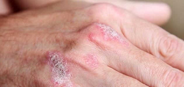 ما هو علاج مرض الصدفيه