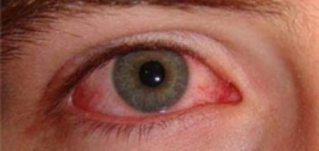 1a27d5f37 ما هو علاج رمد العين - إستشاري