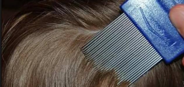 ما هو علاج حشرات الشعر