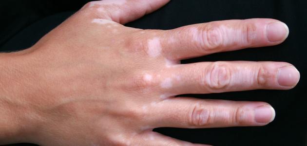 ما هو مرض البهاق وعلاجه