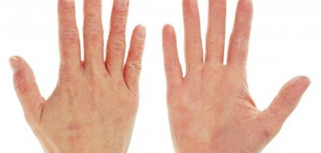 ما هو علاج جفاف اليدين