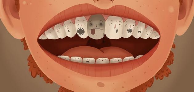 معالجة تسوس الاسنان بالاعشاب