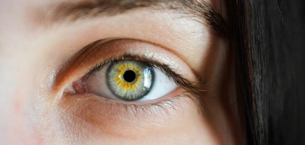 التهاب أسفل العين