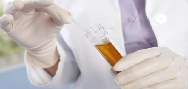 التهاب البول مع نزول الدم