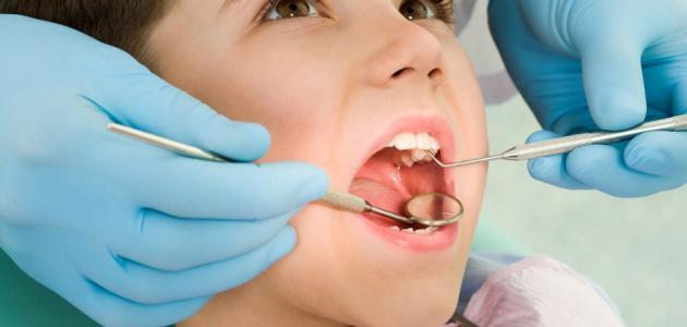 التهاب الاسنان
