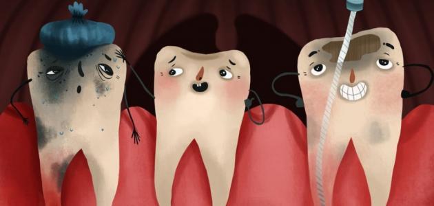تسوس الاسنان عند الاطفال إستشاري