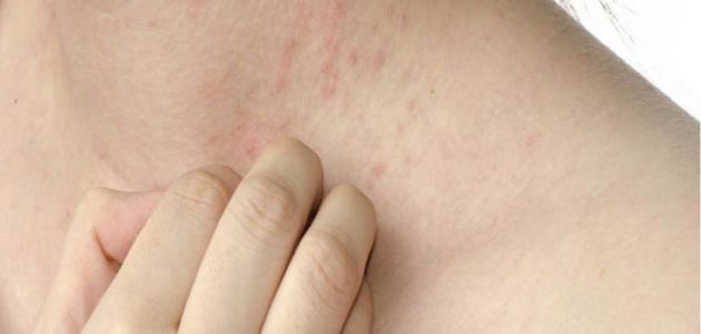 ما اسباب الطفح الجلدي