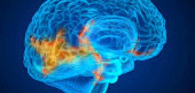 ما اعراض ورم المخ