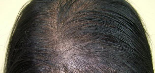 ما اسباب تساقط الشعر وما علاجه