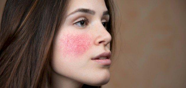 ما علاج حساسية الوجه